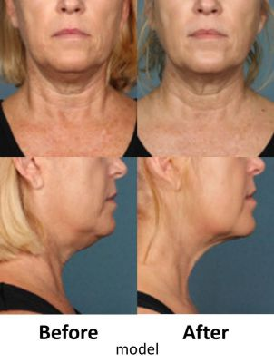 Kybella fat dissolving injections